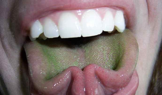 Темно-зеленый налет на языке