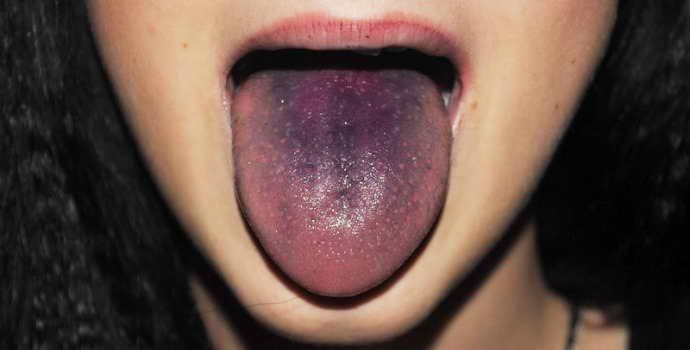 О чем свидетельствует появление черного налета на языке и как устранить неприятный симптом