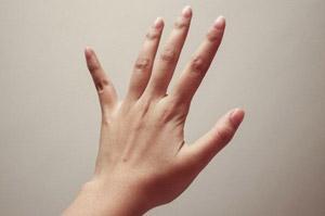кисть с остеоартрозом