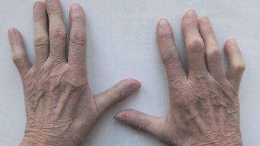 соли в пальцах рук