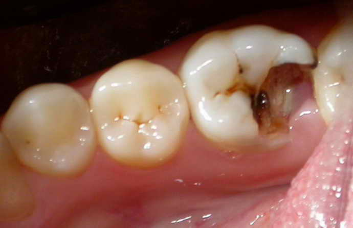 Повышенная пломба производит сильную нагрузку на зуб