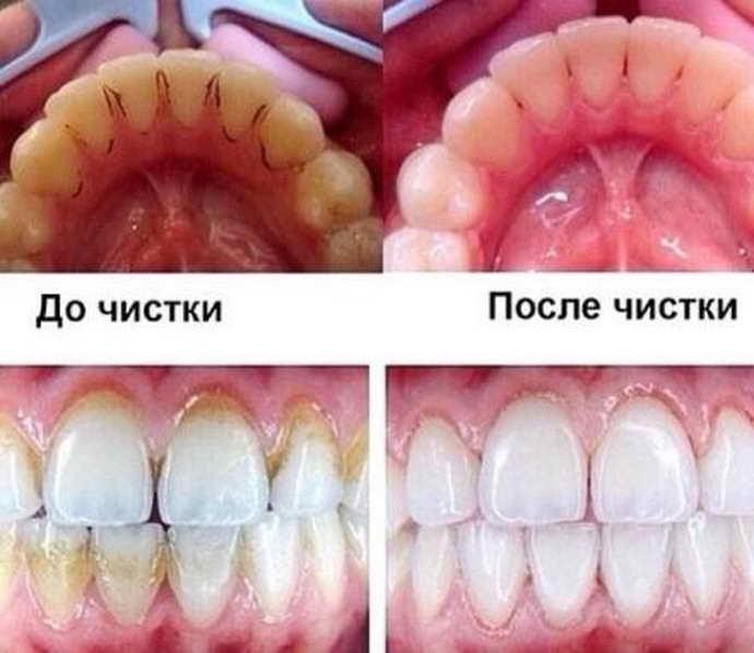 Причины формирования зубного камня