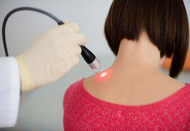 лазеротерапия остеохондроза