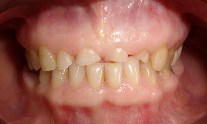 Высокая стираемость зубной эмали