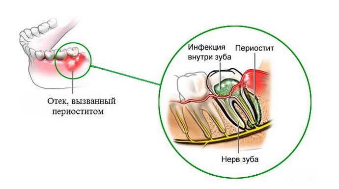 как развивается флюс на десне
