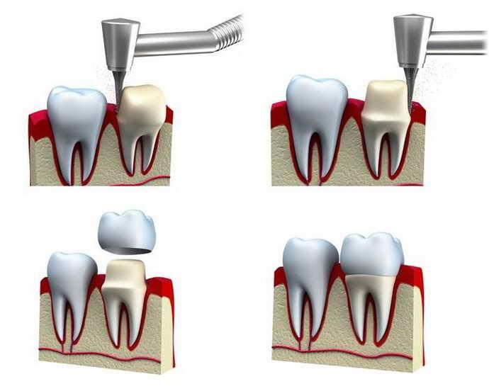 как ставят коронку на зуб