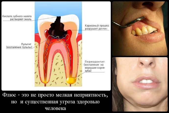 Физиологическийотек после удаления зуба мудрости