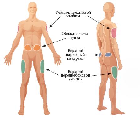 Места для внутримышечных инъекций