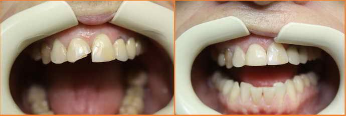 зачем ставят коронки на зубы