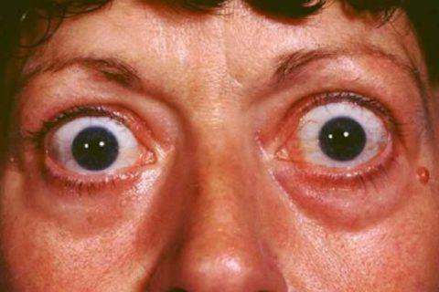 Яркие признаки тиреотоксикоза