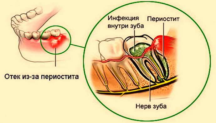 Симптоматика хронического периостита