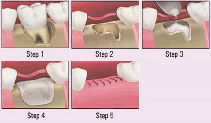 Гемисекция зуба мудрости
