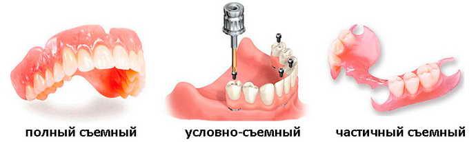 гибкие съемные зубные протезы зачем нужны