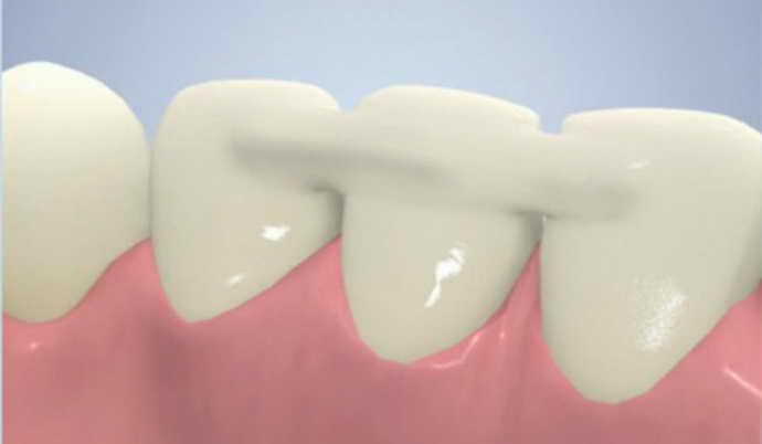 шинирование нижней челюсти