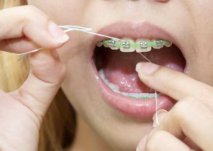 нить для чистки зубов с брекетами