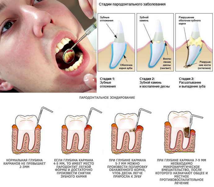 Методы лечения и диагностика пародонтоза