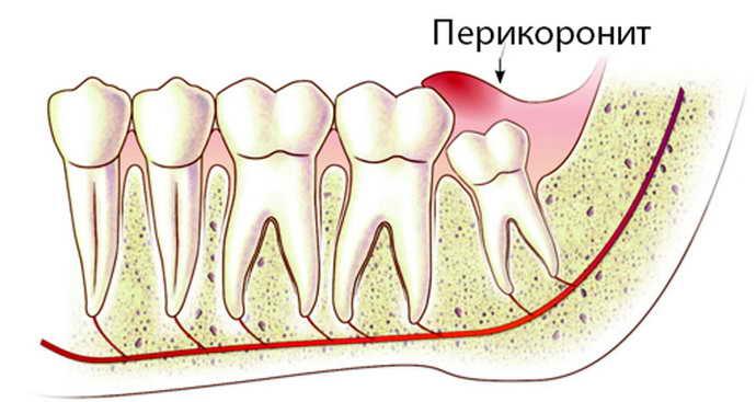 Перикоронит – одно из наиболее часто встречающихся заболеваний при росте зубов мудрости