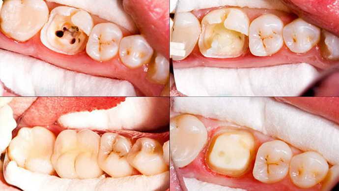 Лечение пульпита до и после