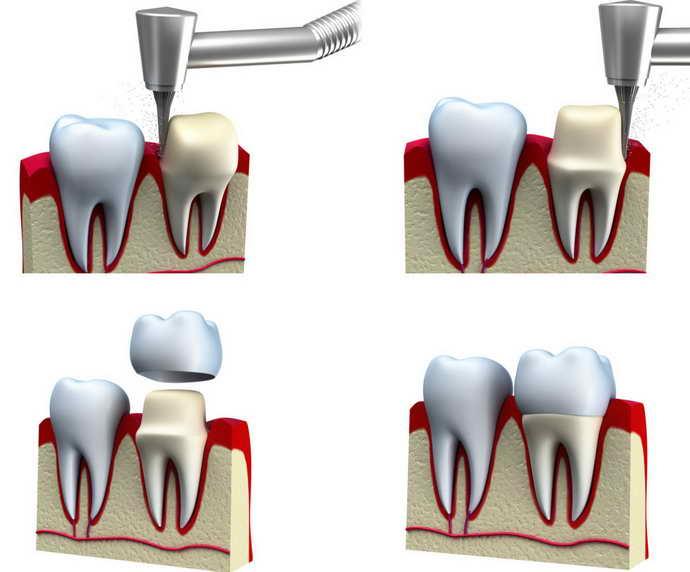 Этап установки зубной коронки