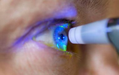 лечение глазного миозита