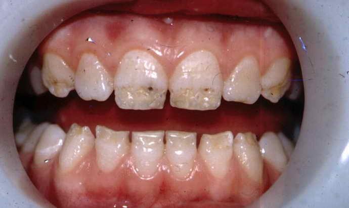 Признаки повреждения зубной эмали