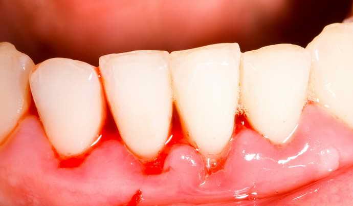 Наличие воспалительных процессов на деснах и в ротовой полости и виниры