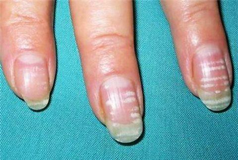 Образованные поперечные полоски на ногтях