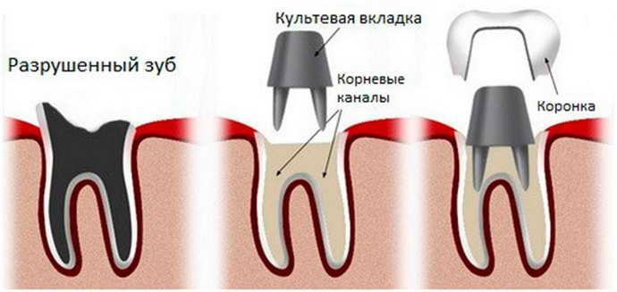 Виды вкладок на зуб под коронку