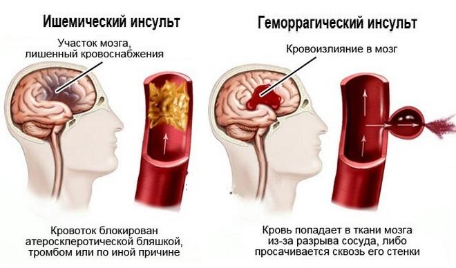 Причины комы при инсульте