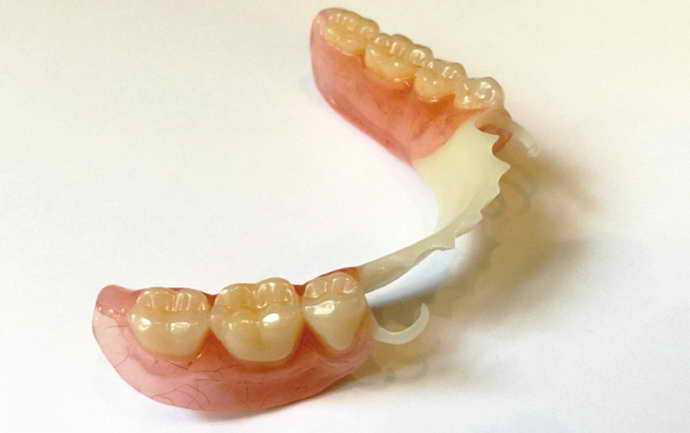 нижний съемный зубной протез