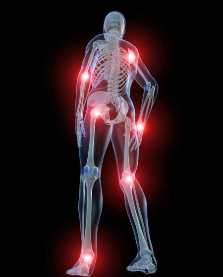 Симптомы и последствия заражения боррелиозом после клещевого укуса у людей