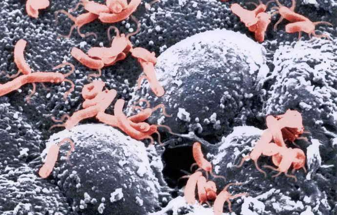 Виды бактерий, вызывающие запах