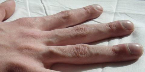 Пальцы по форме напоминающие барабанные палочки