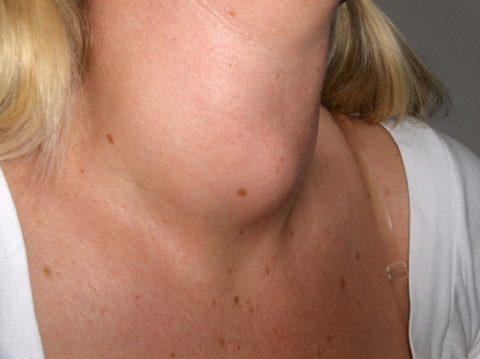 На фото представлен вариант деформации шейного отдела вследствие развития диффузного токсического зоба.