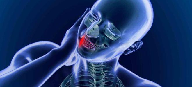 Как лучше лечить невралгию языкоглоточного нерва: надежные методы