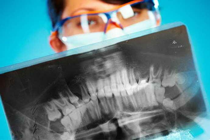 Диагностика почерневшего под пломбой зуба