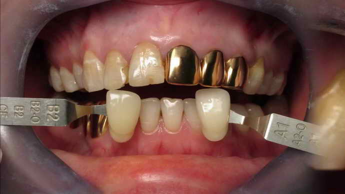Золото и палладий коронки