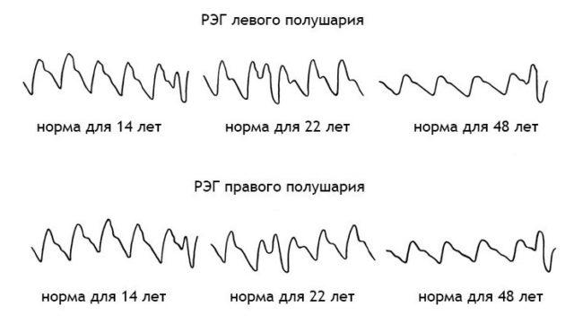 График волн