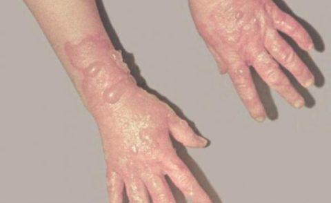 Признаки действия ядов на кожу