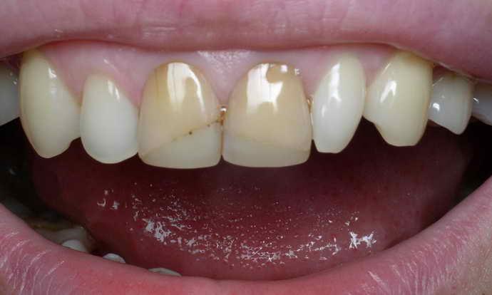 Стоматологи рекомендуют устанавливать виниры