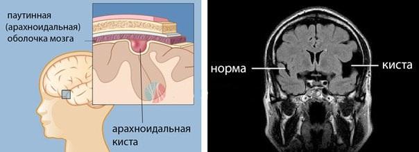 Диагностика арахноидальной кисты головного мозга