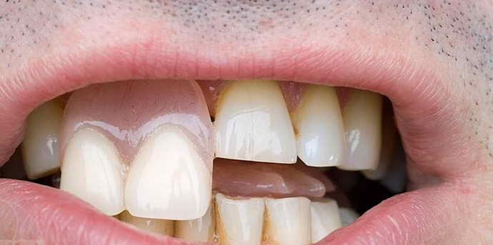 Частичная замена единичных зубов