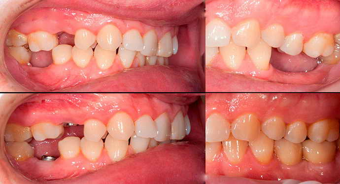 почему могут назначить имплантациюю зубов