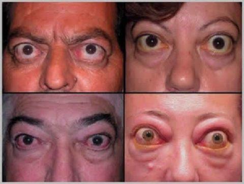 На фото представлены люди, страдающие тиреотоксикозом, что является фактором развития криза.