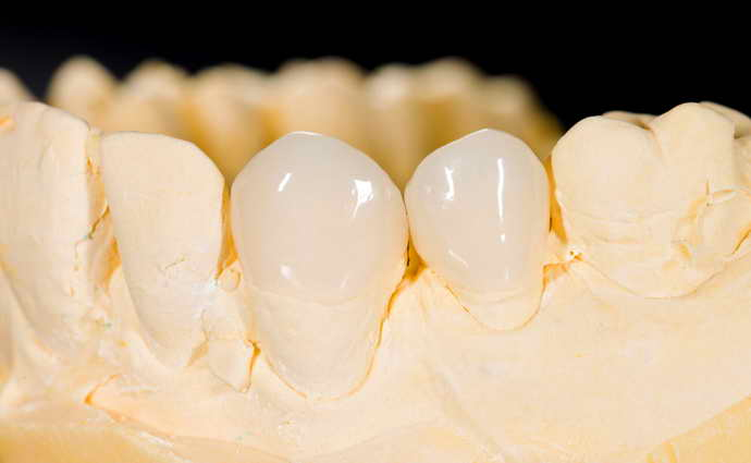 вкладка на зуб под коронку плюсы