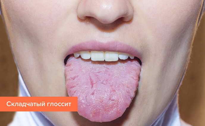 Причины появления складчатого глоссита