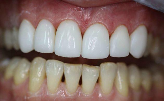 В отличие от коронок, виниры устанавливаются только на передние зубы