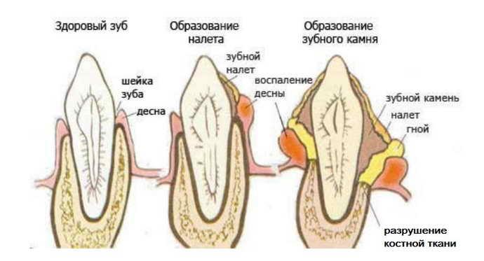 Почему чернеет зуб под пломбой