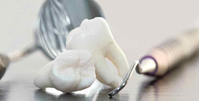 Показания и противопоказания к депульпированию зуба перед протезированием
