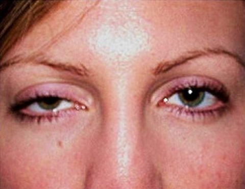 Птоз – один из симптомов ботулизма